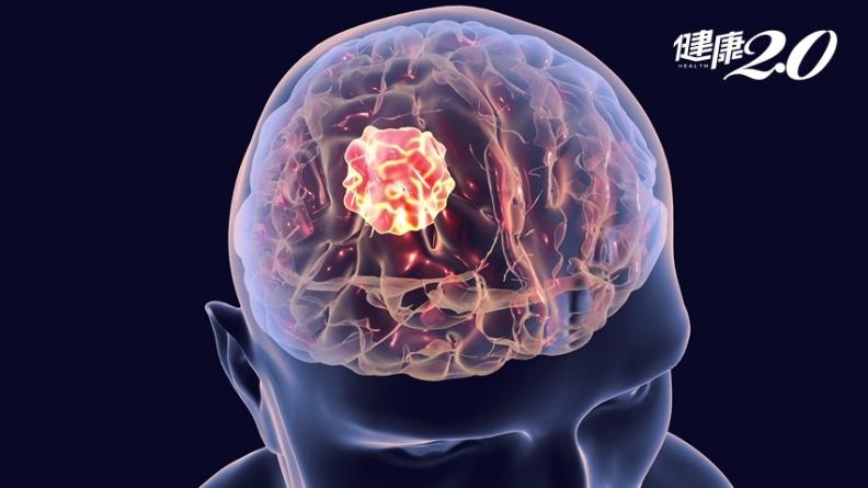 自動偵測腦瘤!人工智慧30秒即可 準確度高達90%