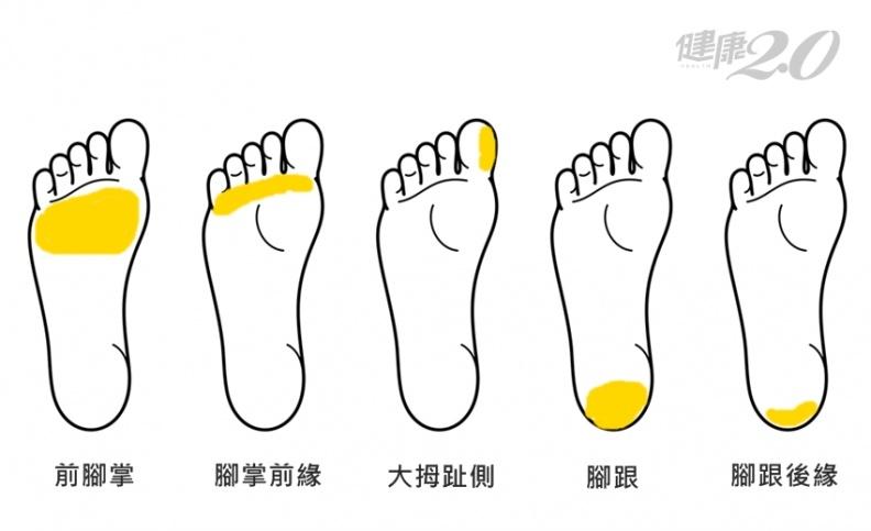 5種腳掌顏色+5個腳底長繭位置 中醫教你看出健康玄機!