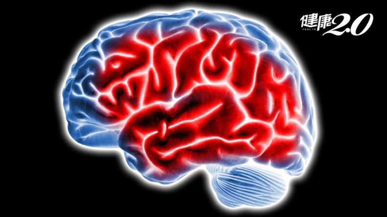 中研院找到抑制「腦火」關鍵 可改善失智症狀、延長壽命