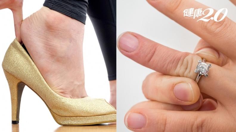 戒指戴不下、鞋子越穿越大?罹患「肢端肥大症」 死亡率高2倍、壽命少15年