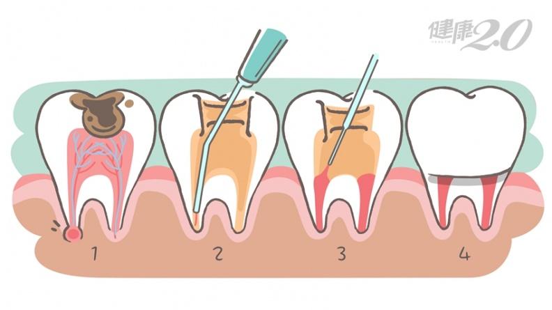 為什麼齲齒要抽神經?醫:根管治療可保住牙齒