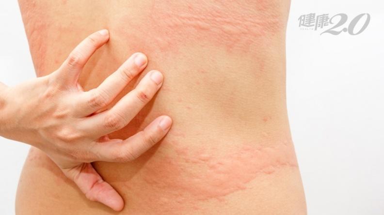 蕁麻疹癢到睡不著?居家緩解3穴道有效