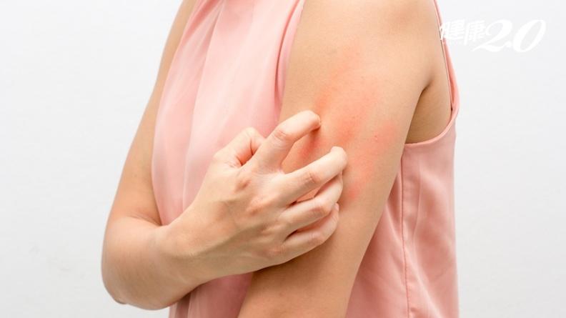 異位性皮膚炎長大就會好?她全身刺痛20多年 「這治療」有效控制癢感