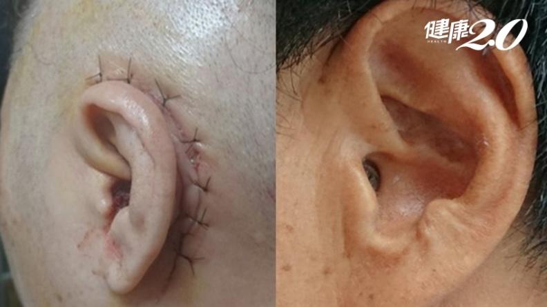 中耳炎內視鏡微創手術 不需住院、完全無傷口!