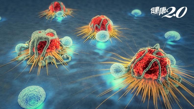 每天會產生5千個癌細胞! 加上7種「罹癌要素」才會致癌