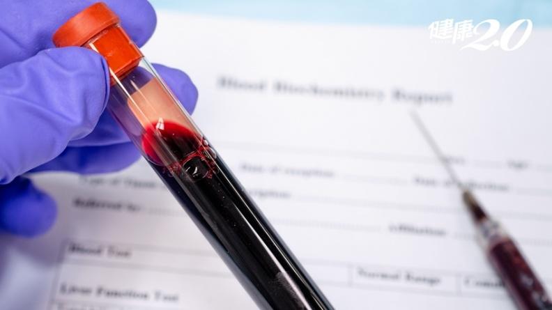 肝癌復發可預測!台大研究:抽血3cc可偵測小於1公分腫瘤