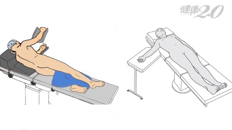 免切斷肌肉!正前開式髖關節手術 復原期最快只要7天