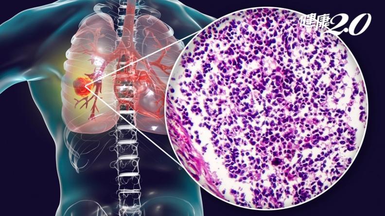 肺癌轉移難治癒?國衛院發現癌轉移、復發關鍵 提高病患存活率