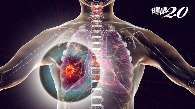 罹肺癌用標靶也無效?治療前少做「這件事」 結果差很大
