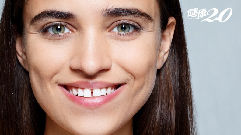 門牙縫變大、嘴開臉呆…原來是舌頭沒放好,還易感冒、喉嚨發炎