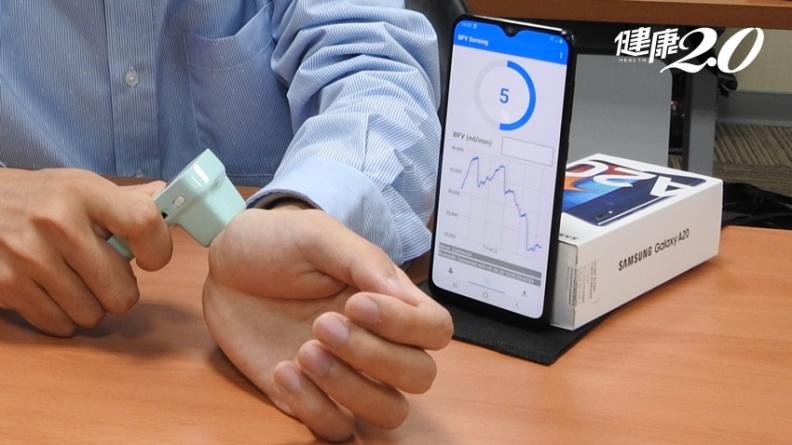 台灣之光!交大開發世界首支AI血流感測器 洗腎瘻管好壞一掃即知