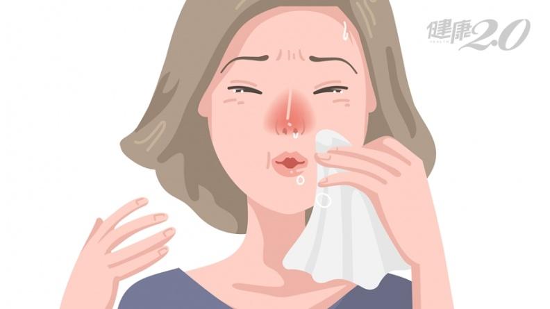 三九貼治過敏性鼻炎!7大族群慎用 中醫師公開「飲食禁忌」