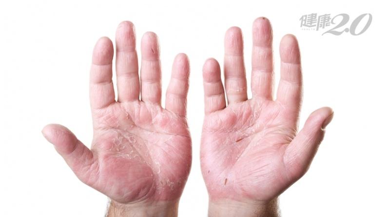 天冷手部易乾裂、脫皮!專家公開擦護手霜最佳時機 「這方法」滋潤效果加倍