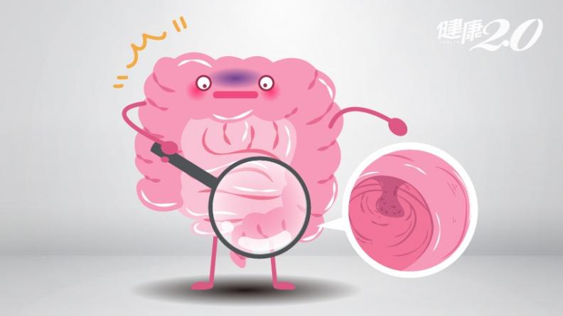 大腸息肉切除後,復發率等於零嗎?6大危險因子會讓癌復發!