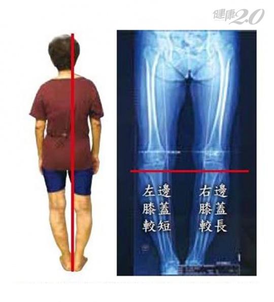 她行動困難、膝蓋痛逾20年 這樣做3個月後走路變輕鬆