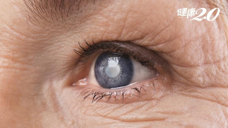 預防2種視力退化,不必靠保健品!營養師公開TOP11護眼食物