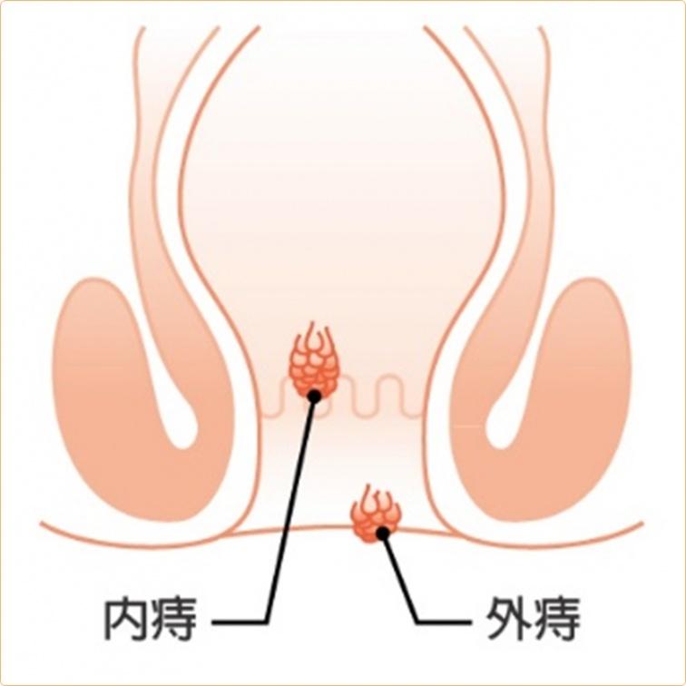 嚇!它讓大男人得墊衛生棉   「菊花」的憂傷常來自4大症狀
