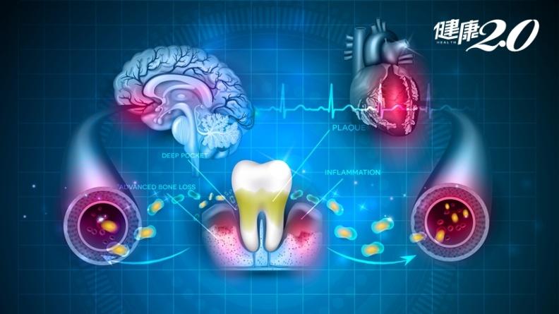 牙周病會傳染!一人罹病全家都遭殃 糖尿病、骨鬆、失智、癌症風險增