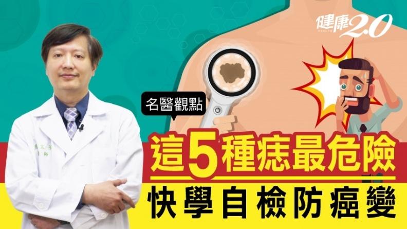 別把皮膚癌當老人斑!這5種痣最危險 醫師教你自我檢查防癌變