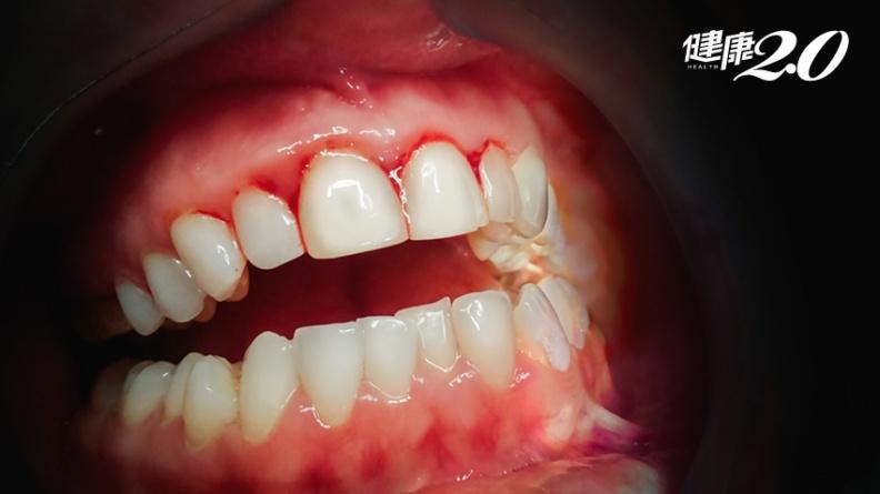 牙齦流血狂補維生素C?營養師警告:恐增結石風險