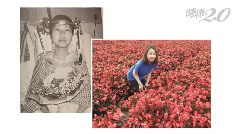 她21歲罹病差點癱瘓、失去性命!「把病痛看成祝福」與病共存30年