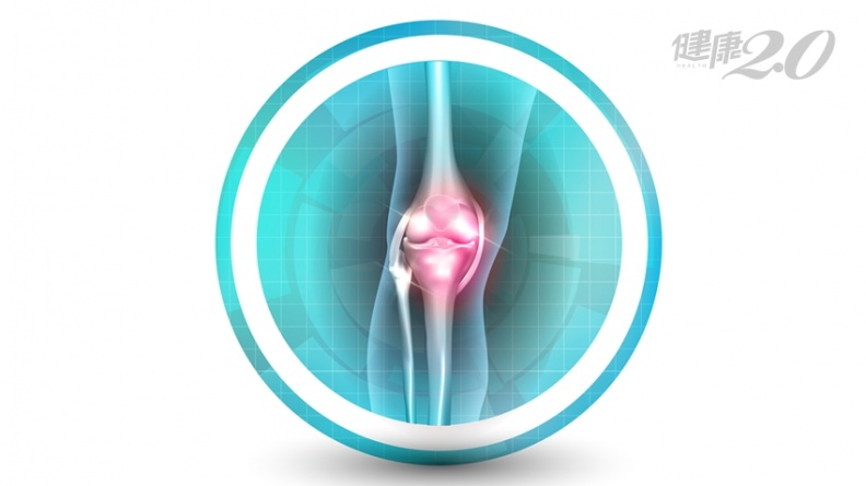 關節炎非過度使用造成?「養好腸道」促軟骨再生 關節可以用到老