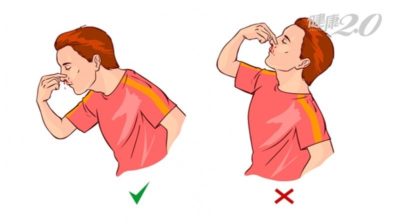 流鼻血頭往後仰是錯的!醫師教3步驟正確止血