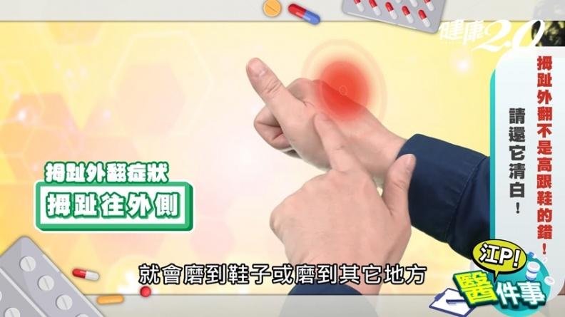 拇趾外翻全身歪!女性發生率高10倍 江坤俊1招「墊腳尖運動」有效預防