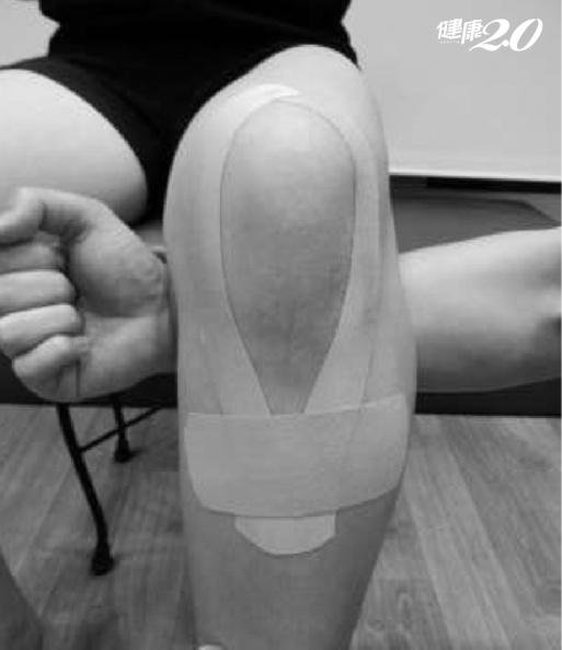 1招強化膝蓋力!正確「貼紮」矯正姿勢 有效改善膝蓋疼痛