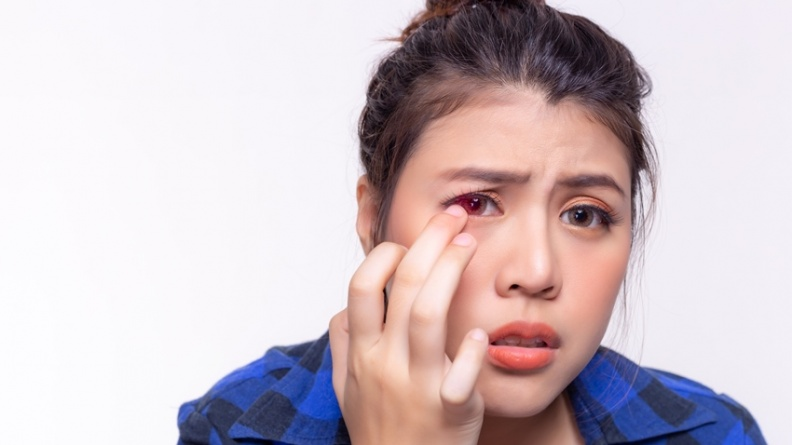出現「這種」紅眼小心腦血管異常!不治療容易失明、中風