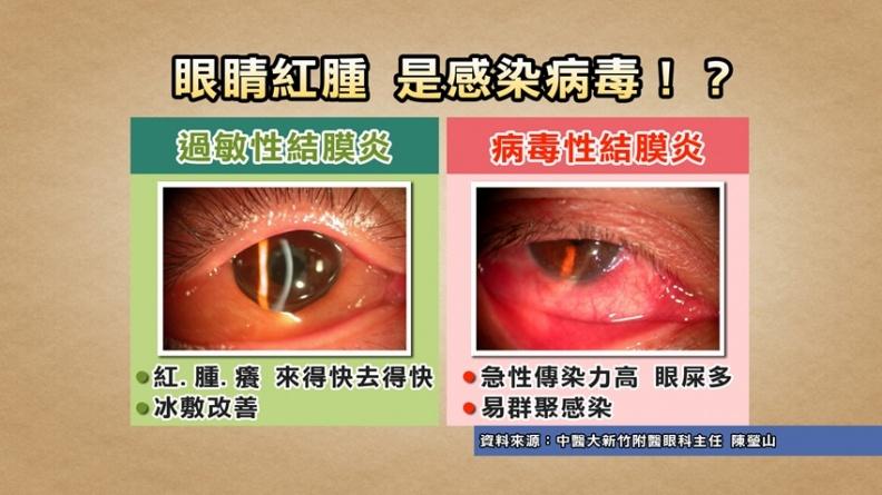 眼睛紅腫是感染新冠肺炎?眼科權威教你分辨過敏性、病毒性結膜炎