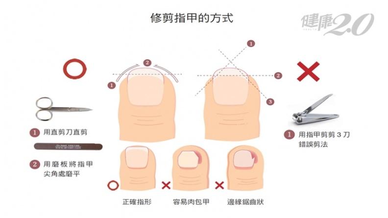 指甲先剪中間還是兩側?美甲專家曝正確修剪方法 這樣剪避免斷甲、捲甲、翻甲