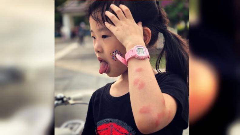 蚊子咬!全身「紅豆冰」紅又癢 醫師教用香茅、丁香快速消腫