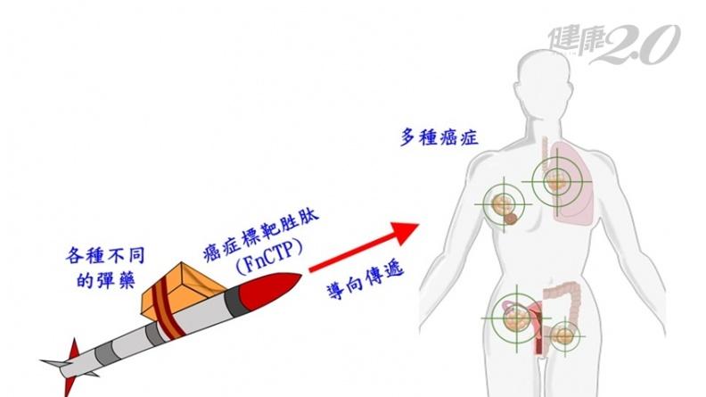 全球首創「導彈式癌症療法」 精準殲滅乳癌、肝癌、大腸癌等11種癌症