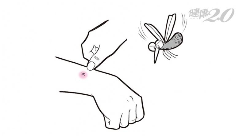 被蚊子叮用指甲畫X止癢?為什麼越抓越舒服?皮膚科醫師曝「這件事止癢絕對不能做」