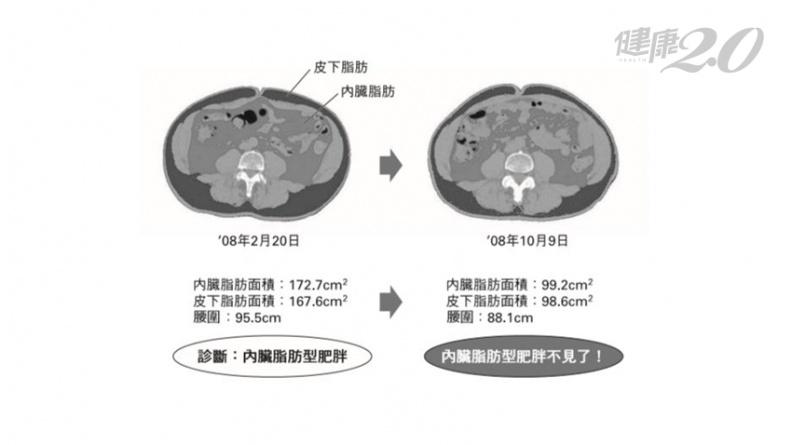 日醫只做了一件事 半年狂瘦16公斤!糖尿病、脂肪肝、高血壓也都消失了
