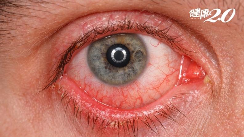 新冠肺炎又有新症狀!3%病患「粉紅眼」 醫師教4招保護眼睛