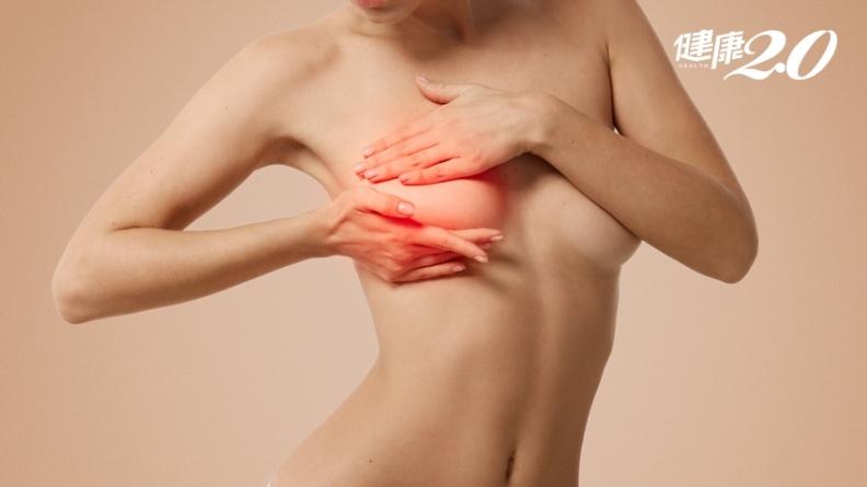 隆乳引發淋巴癌!台灣傳出現首例 食藥署:即日起登錄追蹤