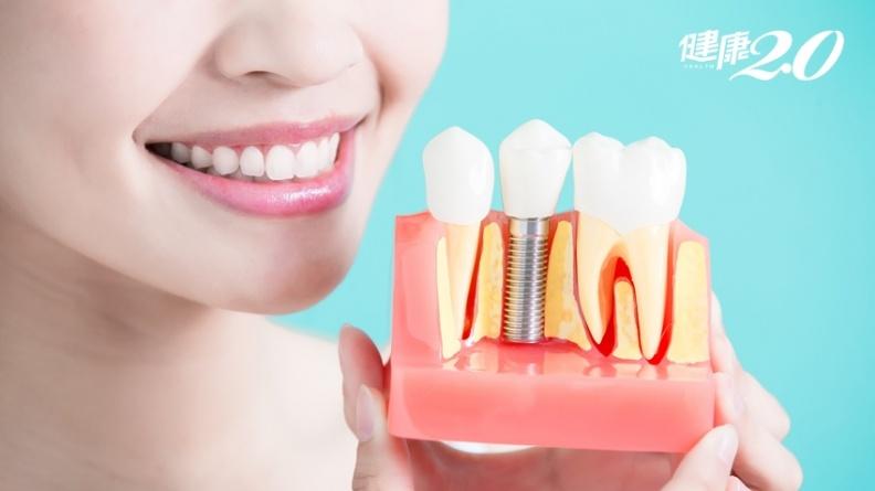 這2種習慣讓植牙失敗!延長假牙壽命,嚴禁骨頭、冰塊、芭樂籽與螃蟹殼