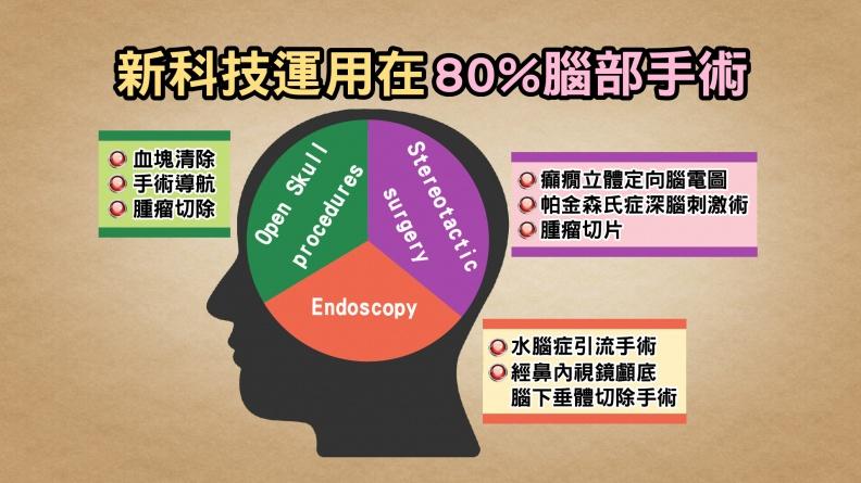 腦瘤不可怕!手術機器人讓開腦手術省時誤差小