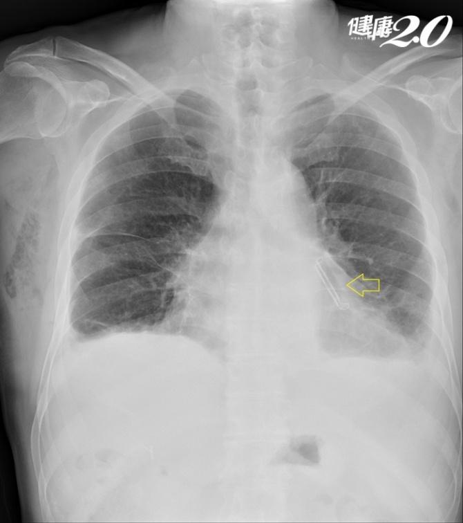 「心律不整」中風機率多5倍!男子心房顫動險中風,微創手術阻血栓