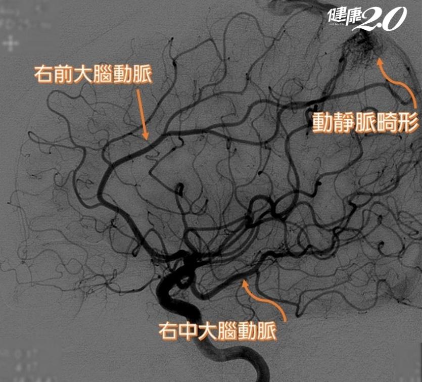「異常頭痛」小心中風!她左半身突然無力,才發現腦內血管畸形