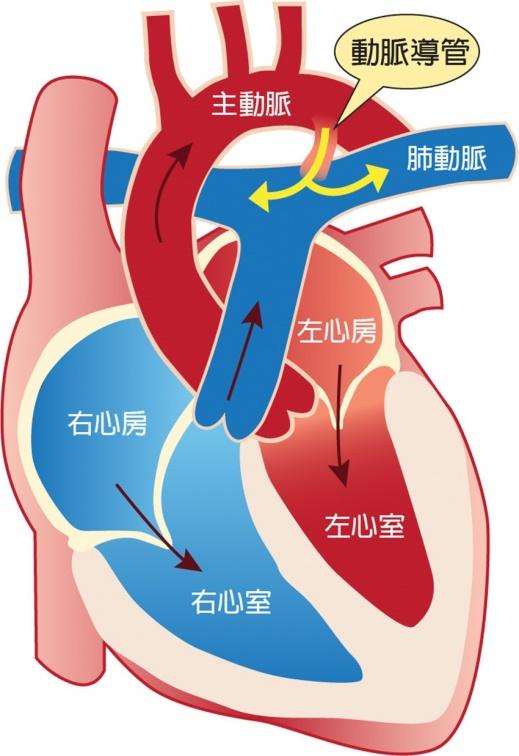 兒童心臟有雜音、容易累,恐是開放性動脈導管 2歲兒心導管治療「救心」