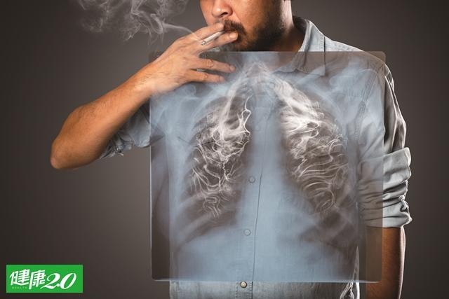 每天1包菸 肺細胞年突變上百次