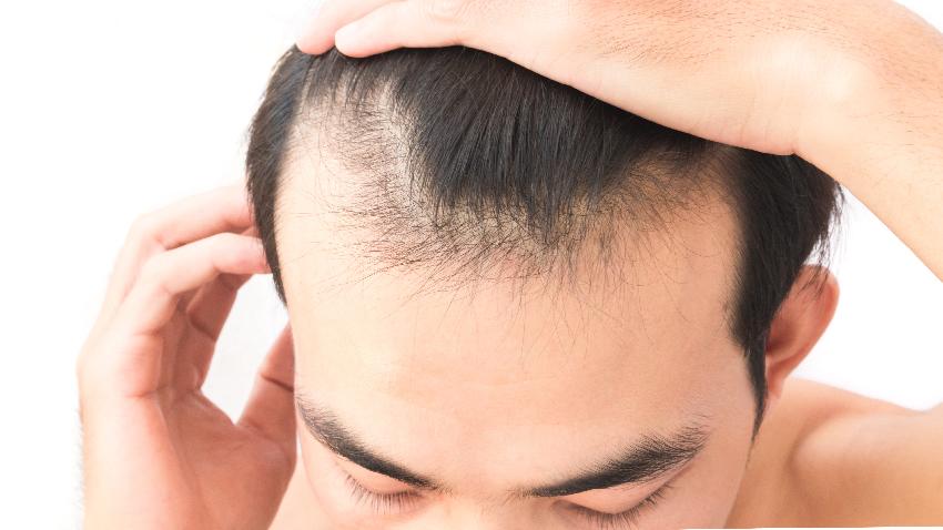 雄性禿有新藥  人生勝利組不再臭老