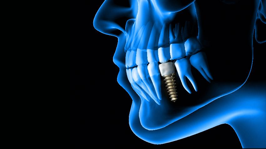 下巴麻木,竟然與牙齒有關?