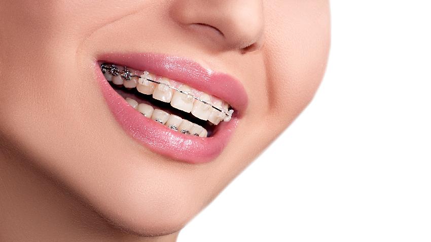 牙齒矯正就能一輩子平整?整牙前,務必先搞懂這4件事