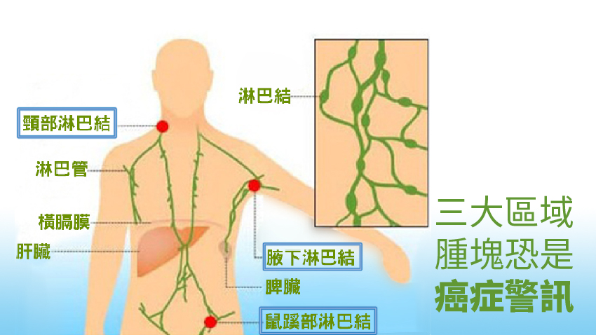 頸部有硬塊恐是癌!醫師教你3招分辨良性惡性