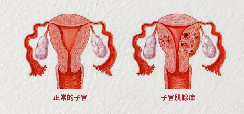 生理期就經痛?小心「子宮肌腺症」讓子宮不保