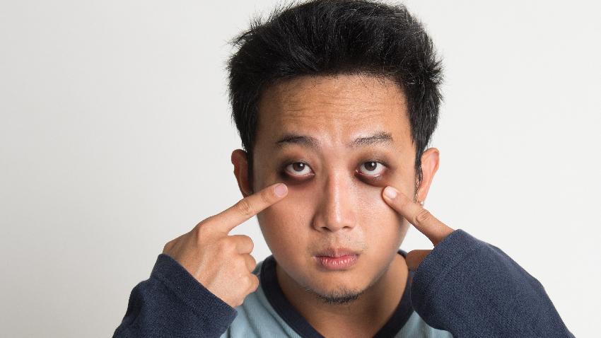 雷射消黑眼圈 台灣技術紅到日本